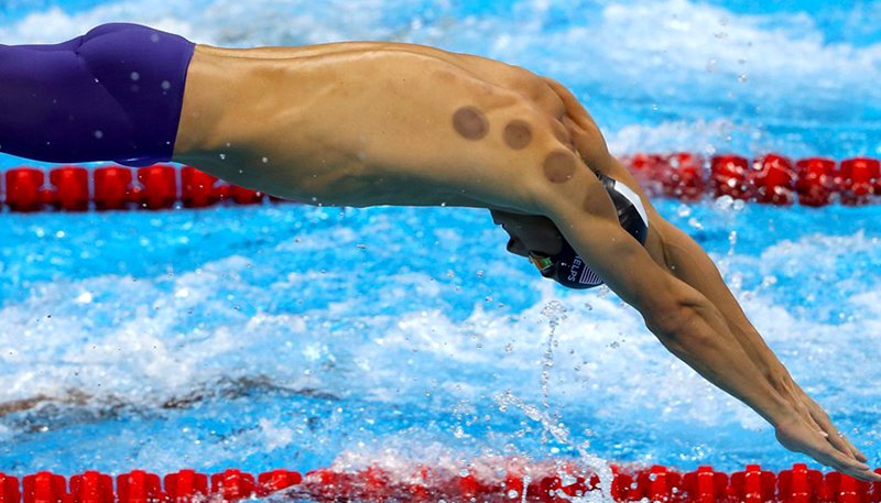 Sports Injuries - Cupping