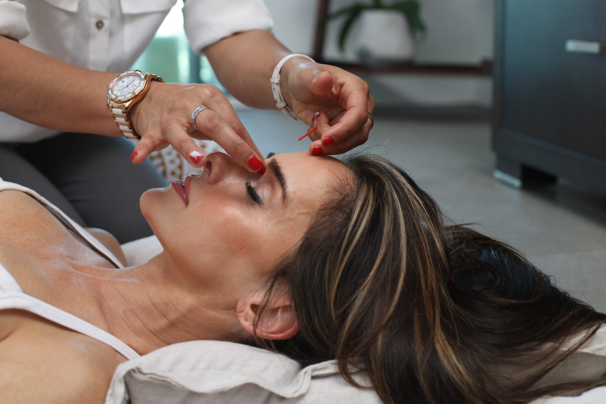 Acupuncture for face lift